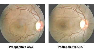 Preoperative CSC and Postoperative CSC