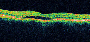 Clinical photo of a patient with central serous chorioretinopathy (CSC).