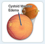 Cystoid macular edema (CME), or swelling of the macula, can occur as a result of disease, injury, or, occasionally, eye surgery.